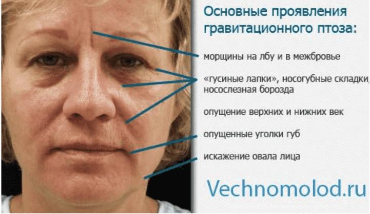 Гравитационный птоз лица
