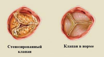 Окостенение клапанов сердца (стеноз)
