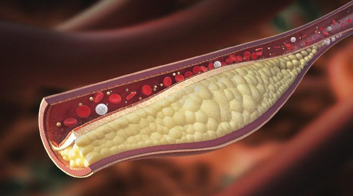 Гомоцистеин вызывает атеросклероз